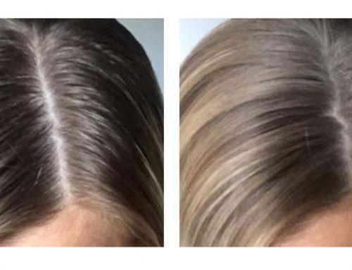 LACTODIOL TREATMENT SHAMPOO: OILY HAIR